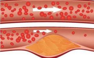 plaque de cholestérol
