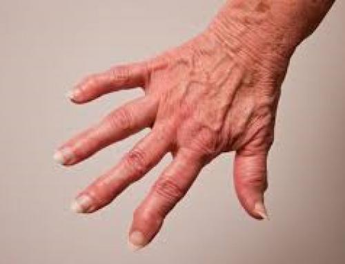 De nouveaux traitements en test pour l'arthrose grâce aux nanotechologies