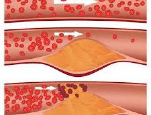 Le mauvais cholestérol peut être réduit grâce à un anticorps monoclonal